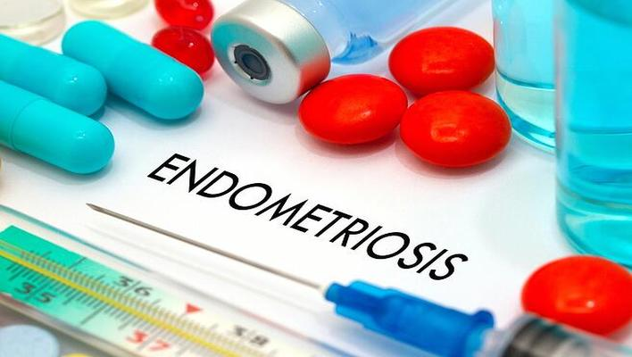 Endometriosis definition, stages, treatments, and pain management